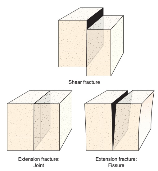 types of fractures Different types of bone fractures explained ankle fracture / fractures and its repair- everything you need to know - dr nabil ebraheim - duration: 5:21 nabil ebraheim 362,086 views.