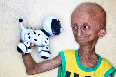Nihal suffers a rare genetic disorder called progeria