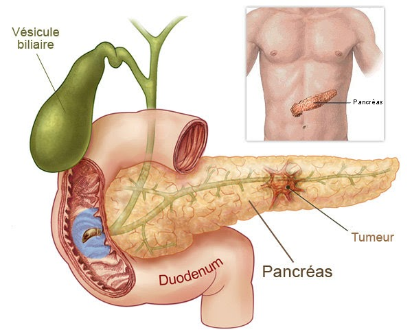 problems of pancreatic cancer Learn about the signs and symptoms of pancreatic cancer, including, but not limited to: jaundice, pale & smelly stools, upper abdominal pain.