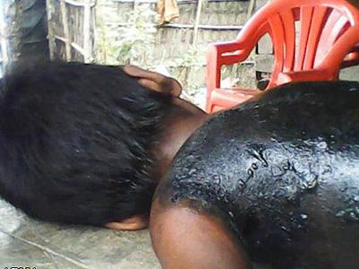 http://4.bp.blogspot.com/-uyxPFV3x_o4/UATw4IaiPdI/AAAAAAAABtI/46RTfXcBf2k/s1600/violence_arakan_muslim_rohingya_burma.jpg