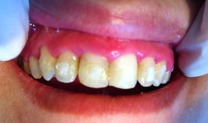 Ortodontia E Arte 2014