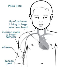 picc line like look What a is