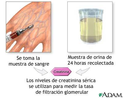 acidi urici alti gravidanza alimentos y bebidas ricos en acido urico que hace aumentar el acido urico