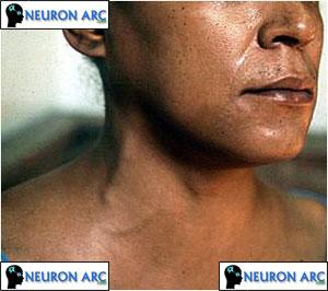Acute pericarditis : Pericardial Disease ppt