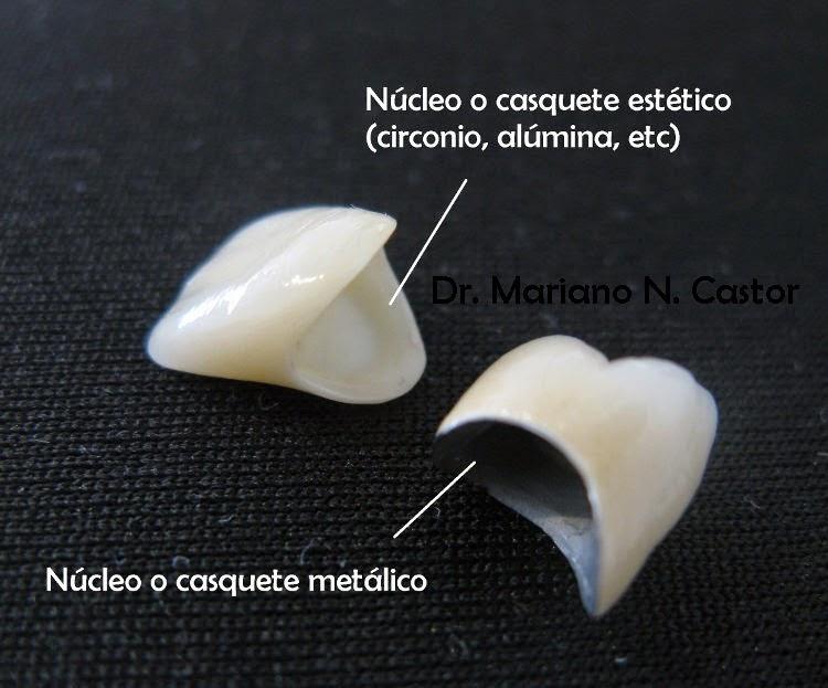 Soluciones para el dolor de muela tipos de materiales for Como se pone ceramica