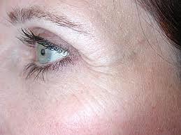 jenis kulit kering, masalah kulit kering, kulit kering dan gatal, kulit kering bersisik, zarraz paramedical, rawatan masalah kulit kering