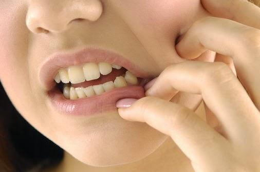 Kebiasaan Buruk Yang Bisa Menyebabkan Sakit Gigi