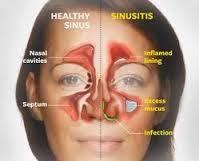 Pengobatan Tradisional Penyakit Radang Sinusitis