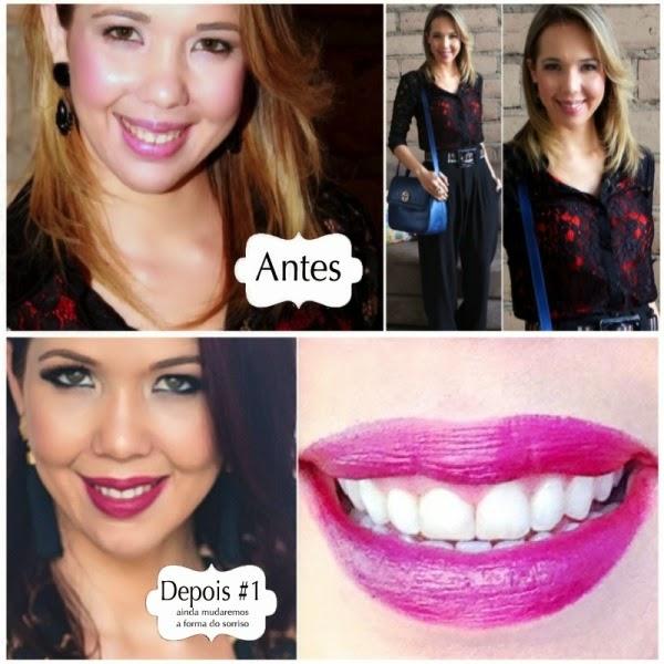 Dica De Beleza E Felicidade Clareamento Dental Mala Com Rodinha