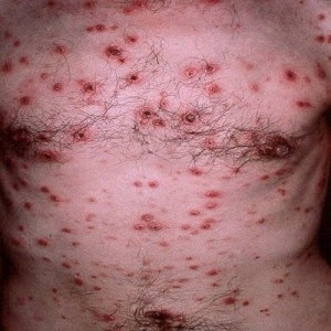 sifilis,penyakit sifilis.