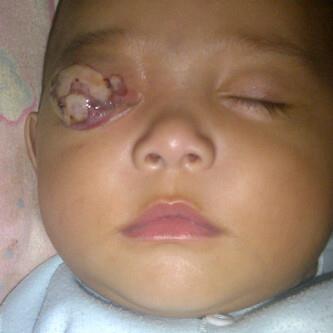 Retinoblastoma: kanker mata pada anak