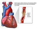 asuhan keperawatan pasien dengan Gagal Jantung Kongestif, asuhan keperawatan CHF