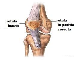 Luxatia: recunoastere, depistare, tratament