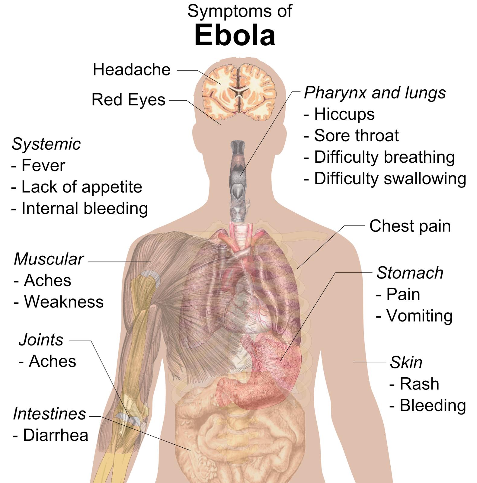 La fièvre hémorragique Ebola