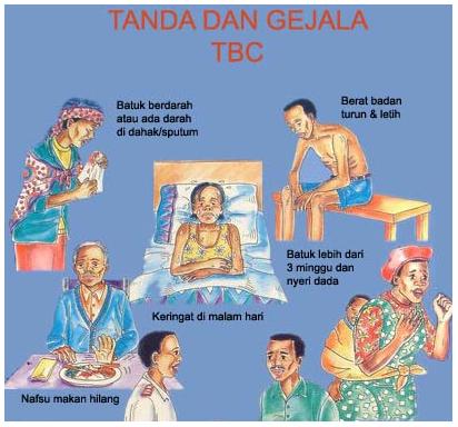 Image Result For Gejala Penyakit Gondok Ciri Ciri Penyakit Gondok