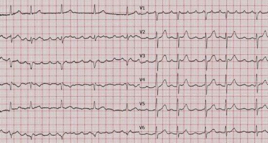 Palpitasi di EKG