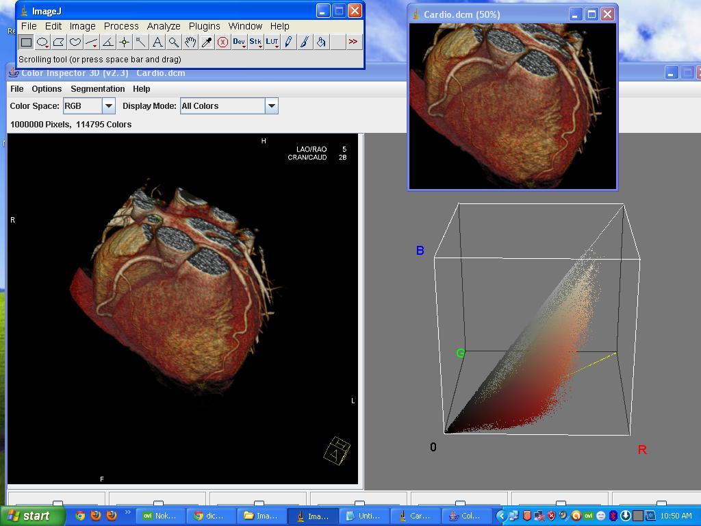 Programming Tips: Dicom Image Viewer in ImageJ Tool | ImageJ Dicom