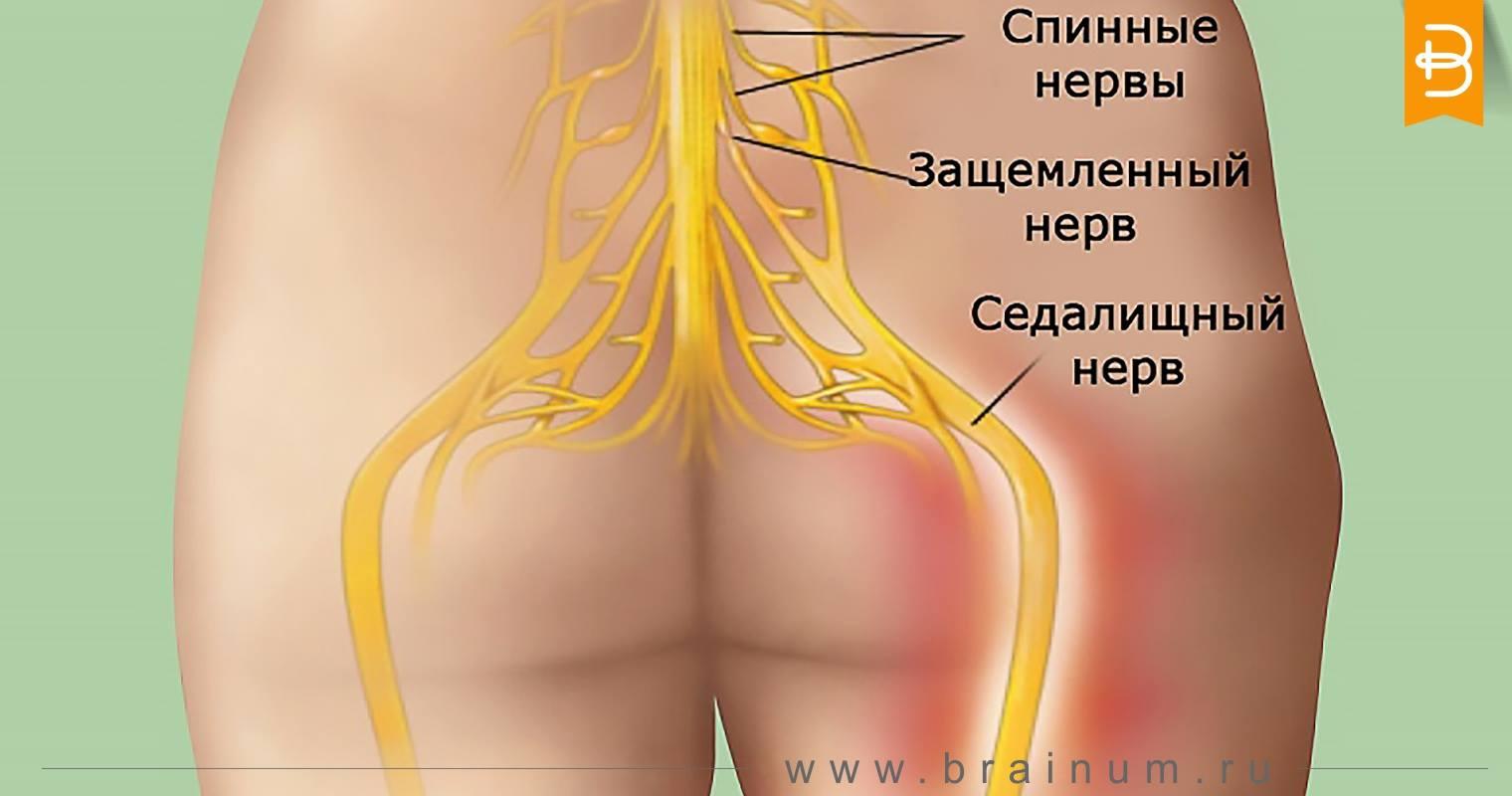 Защемление нерва в спине: лечение в домашних условиях 8