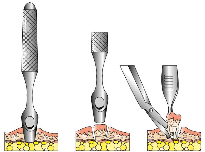 Márgenes quirúrgicos | Servicio de Anatomía Patológica Veterinaria