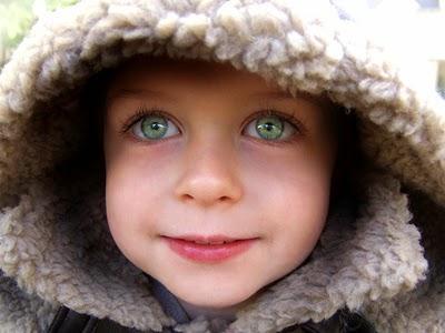 Gangguan Kelainan Mata Yang Dapat Terjadi Pada Anak