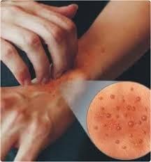 Obat Untuk Penyakit Alergi