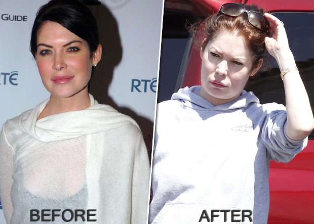 lara-flynn-boyle_plastic-surgery_before-and-after.jpg