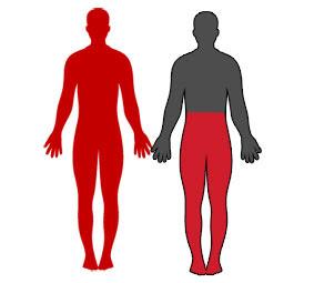 ilustrasi kekurangan sel darah merah