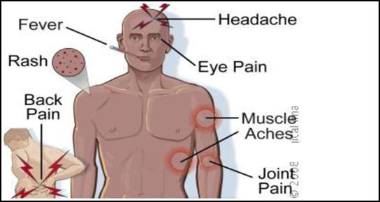 How to prevent dengue during monsoons- Dengue symptoms