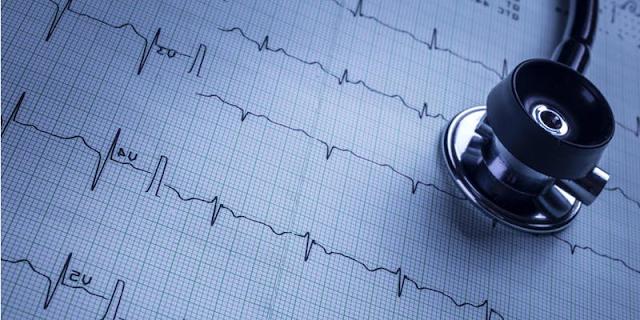 Curso de Eletrocardiograma Básico