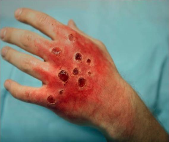 Pacientes quemados pacientes quemados y la fonoaudiolog a for Quemaduras de cuarto grado