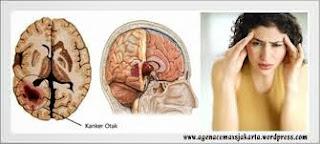 Obat Penyakit Kanker Otak , Gejala Dan Penyebabnya