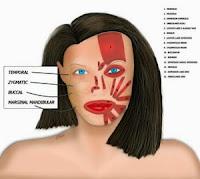 Facialpalsy