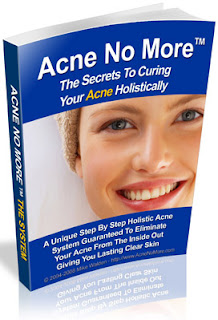 Home Remedies for Acne Image