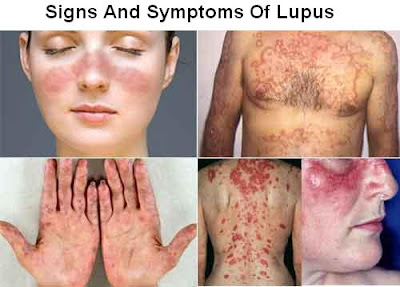 Lupus Disease Signs And Symptoms, Diagnosis And Treatment