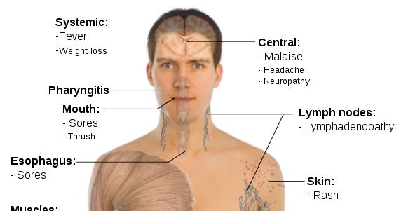 several aids early symptoms in men, Sphenoid