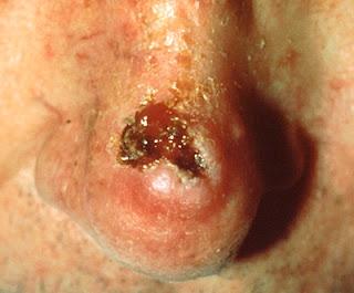nose skin cancer