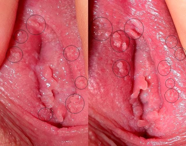 Penyakit Kutil Kelamin Condyloma Accuminata