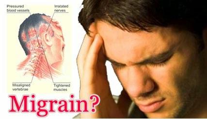 Bagaimana atasi migrain