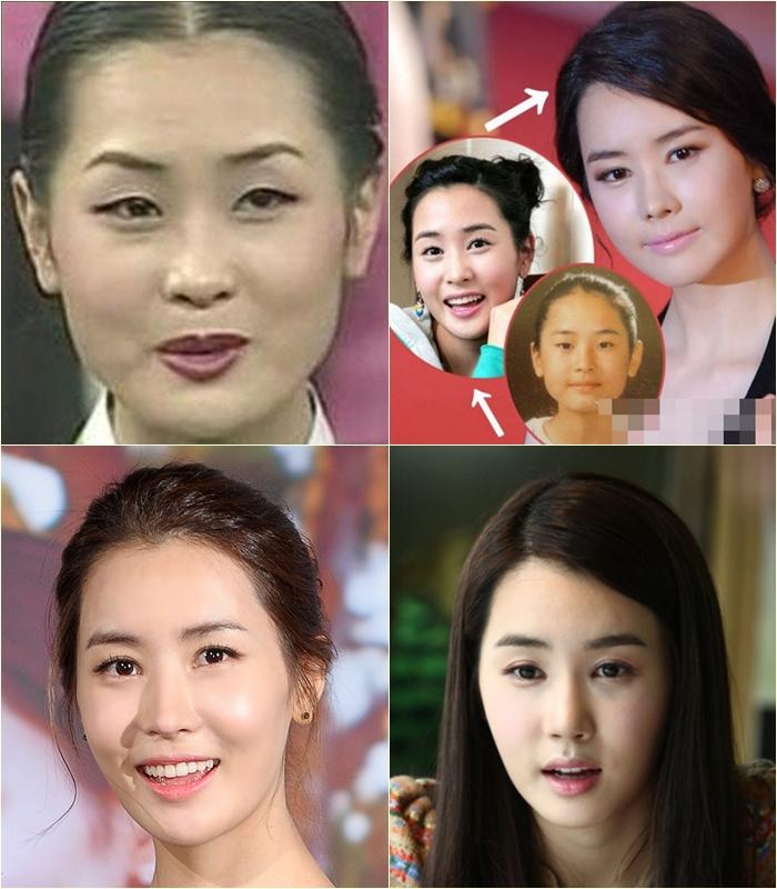 Korea observer lee da haes plastic surgery pictures of lee da hae through the years mightylinksfo