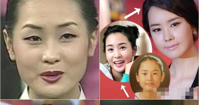 Korea observer lee da haes plastic surgery mightylinksfo