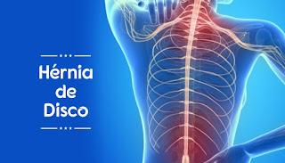Pilates melhorando sintomas da Hérnia de Disco