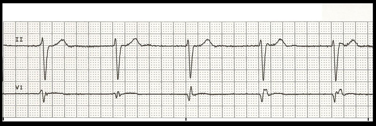 Float Nurse: Basic EKG Rhythm Test 11