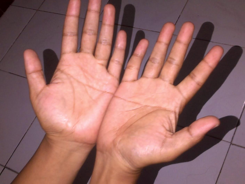 Simian line palmistry tony blair tony bliar - Garis Tanganku Simian Line