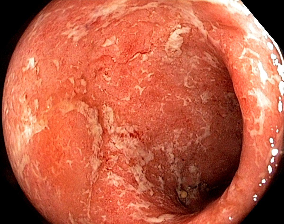 What Is Ulcerative Colitis Symptoms Diagnosed Treatment