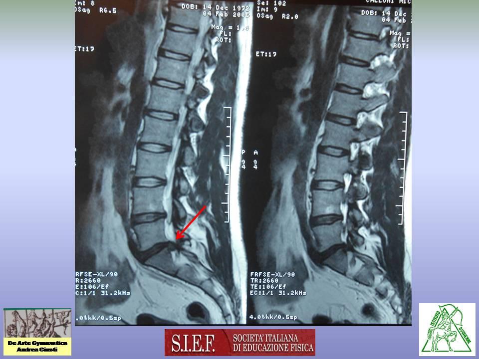 Se è possibile mettere vertebre di reparto cervicale