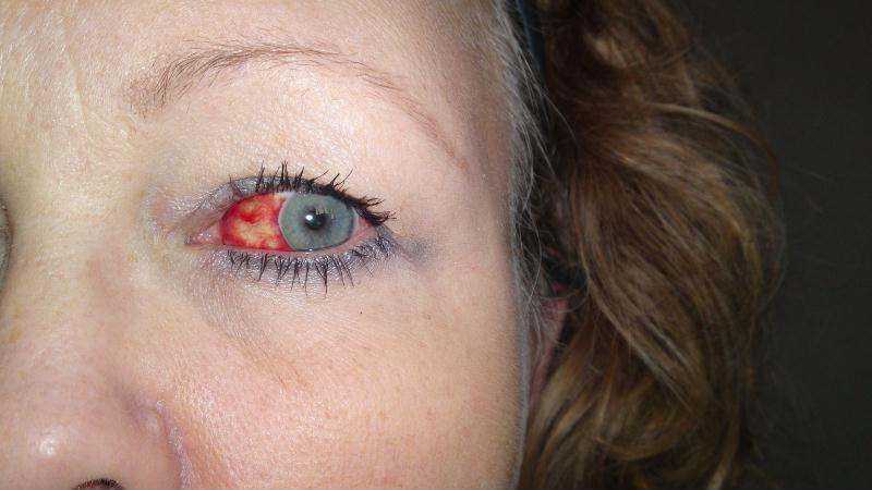 blödning i ögat