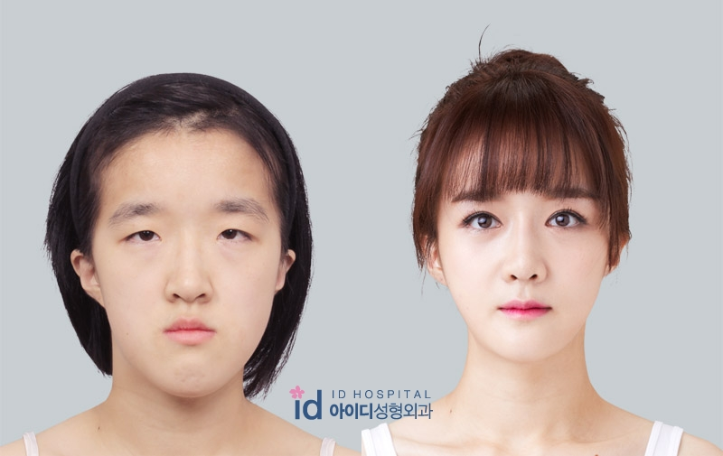 short nose | plastic surgery in korea Wonjinbeauty.com
