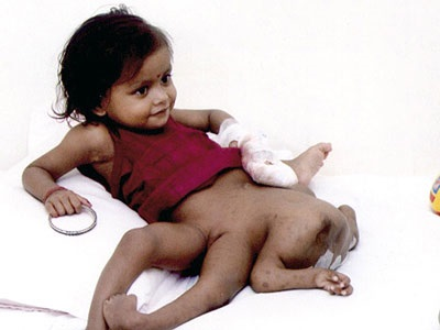 560 - CUTE LITTLE GIRL WITH 8 LIMBS | EVERYTHING-ABOUT-LIFE-UNDER ...