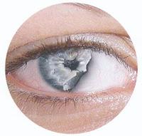 torra rinnande ögon