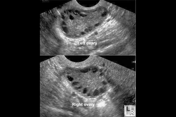 embarazada quiste ovario caso clinico: